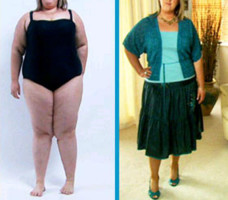 Before and After Results: Bathing Suit
